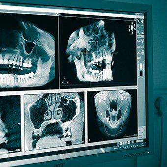 3D Diagnostic | Zahnarzt Köln PAN Klinik