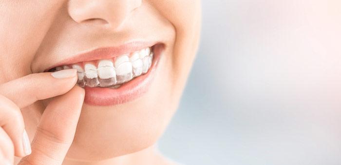Invisalign in der PAN Klinik bei Ihrem Zahnarzt Köln