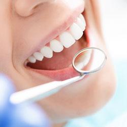Professionelle Zahnreinigung Zahnarzt Köln