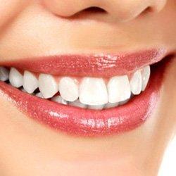 Gerade Zähne |Zahnarzt Köln PAN Klinik